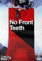 No Front Teeth Photo