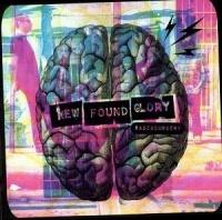 New Found Glory Radiosurgery